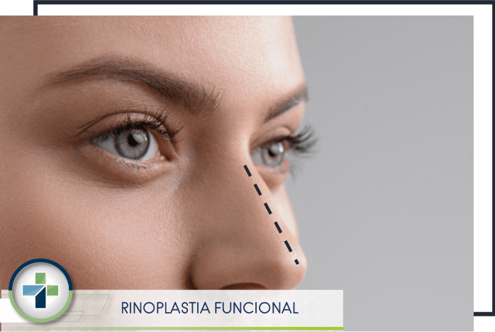 Rinoplastia Cuenca Red Medical Platinum